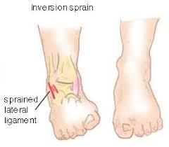 High Ankle Sprain Anatomy Inversion Ankle Sprains Anatomy And Treatment