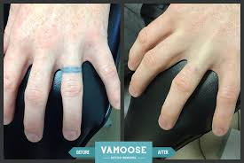 tattoo on the finger price finger tattoo removal chicago il vamoose