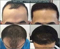 hair transplant month by month pictures fue hairtransplant surgery results just after 5 months post