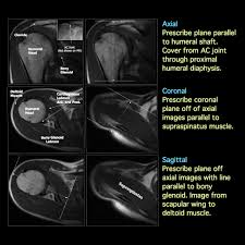 Axial Shoulder Anatomy Shoulder Mri Anatomy The Radiology Assistant Shoulder Mr Anatomy