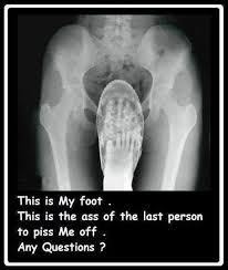 Xray Meme - funny x ray