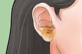 prurito interno orecchie prurito ed eczema dell orecchio nuova terapia