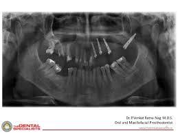 mds class class ii kennedy classsification maxillary edentulous study