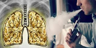 why vaping will not give you popcorn lung