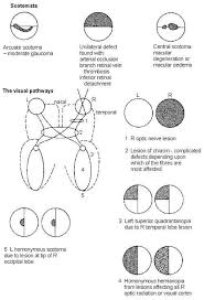Define Cortical Blindness Visual Field Defects Free Medical Information Patient