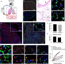 functional vascularized lung grafts for lung bioengineering
