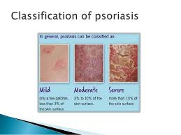 psoriasis treatment psoriasis is your treatment on target psoriasis info