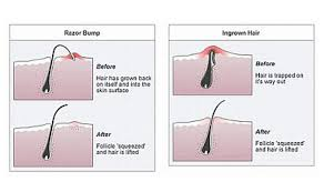 types of ingrown hair how to treat ingrown hairs and prevention