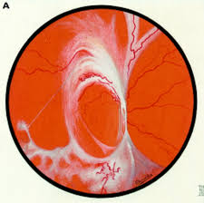 role of vascular permeability factor vascular endothelial growth