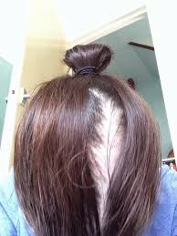 hair styles to cover bald spot on girls fights like a girl everything i ve learned about chemo and