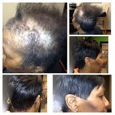 hairstyles for women with alopecia alopecia hair styles superspancom info