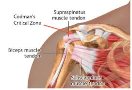 Subscapularis And Supraspinatus Just How Critical Is Codman U0027s Critical Zone Chiroup