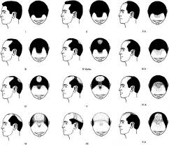 hair transplant calculator try ugraft estimator see how many grafts needed for hair transplant
