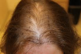 women thin hair on top hair thinning on top woman fresh how to make thin hair look
