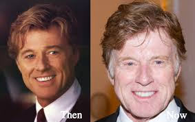 does robert redford wear a hair piece robert redford plastic surgery before and after photos latest