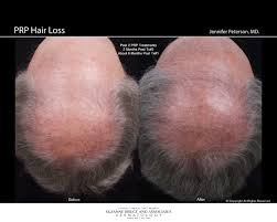 home remedies for hair loss for over 50 new hair loss treatment prp