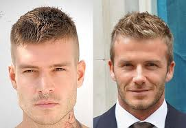 haircuts for receding hairlines for women short hairstyles for receding hairline hairstyle for women man