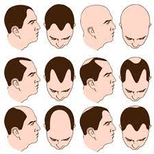 different types of receding hairlines receding hairline in men women causes signs and treatment