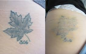 intense pulsed light tattoo removal tattoo removal bella sante md saskatoon botox juvederm