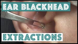 Blind Spot Behind Ear Ear Extractions Youtube