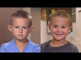 good haircuts for big ears boys parents allow 6 year old boy with big ears to get plastic surgery