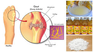 how to lower uric acid naturally youtube