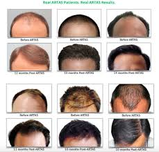 robot hair transplant thailand save up to 70 less with hair