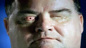 Can Laser Eye Surgery Make You Blind Radical Ookp Surgery Implants Tooth With Lens Into Blind Man Ian