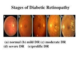 Diabetic Blindness Diabetic Retinopathy Analysis Using Fundus Image