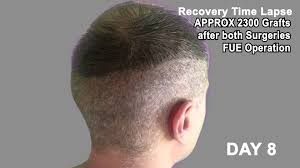 neograft recovery timeline hair transplant review 2013 19 day recovery time lapse of donor area