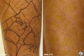 before and after photos inkaway laser tattoo removal