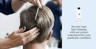 denmark u0027s hair loss solution now available in the us harklinikken