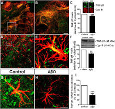 astrocyte transforming growth factor beta 1 protects synapses