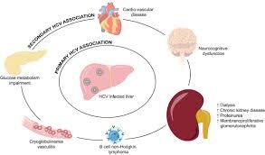 journal hepatology on twitter
