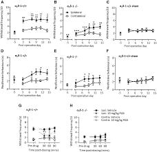 α2δ 1 gene deletion affects somatosensory neuron function and