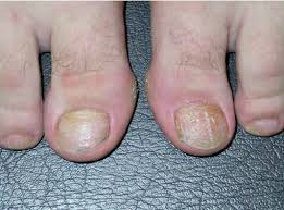 pits arranged in horizontal rows on finger nails which grow