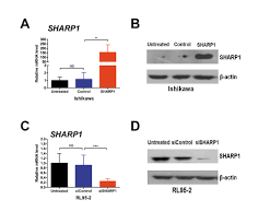 sharp1 suppresses angiogenesis of endometrial cancer by decreasing