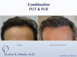 prescreened hair transplant physicians do hair transplants stand the test of time regrow hair q a