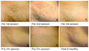how much does laser hair removal cost on back full bikini laser hair removal cost pain bikini lingerie