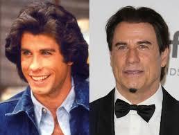 plastic hair travolta plastic surgery botox and hair transplant