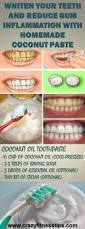 whiten your teeth and reduce gum inflammation with homemade