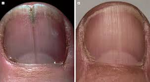 nail bed pain localized longitudinal erythronychia diagnostic significance and