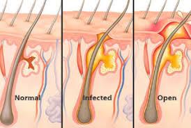do ingrown hair hurt infected hair follicle on scalp leg head ingrown treatment