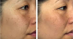 skinclinical reverse light therapy anti aging device reviews led photomodulation light therapy for age spots hyperpigmentation