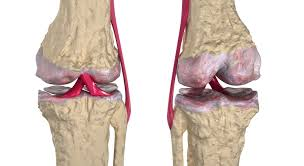 Joints Human Anatomy Overview Of Three Common Bone Disorders Osteoarthritis