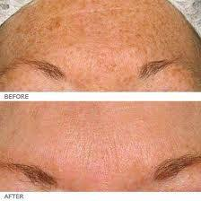 sun spots galway laser skincare clinic