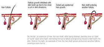 growing out pubic hair dermasphere ingrown hair