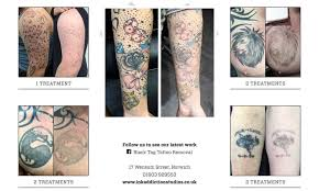 black tag tattoo removal home facebook