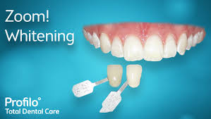 zoom teeth whitening dentist newcastle u0026 sydney profilo