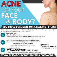 acne research studies north dallas area